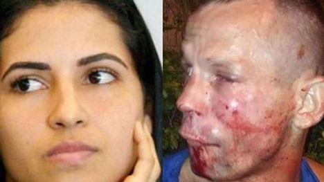 Intenta robar el móvil a una luchadora y termina desfigurado