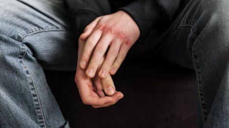 Violencia machista: Aumento del número de víctimas y de denuncias en el segundo trimestre del año